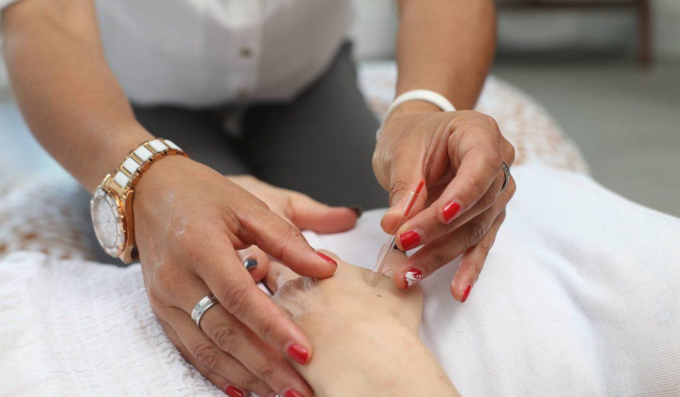 Akupunktura u procesu vantelesne oplodnje